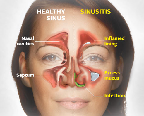 living in well being Chronic Sinusitis