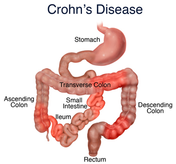 living in well being Crohn Disease