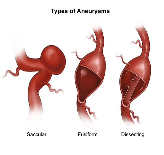 living in well being Dissecting Aneurysm