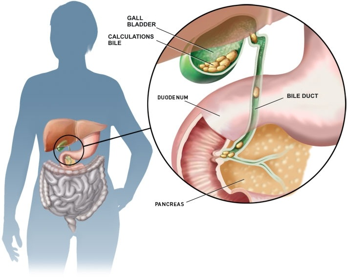 living in well being Gallstones