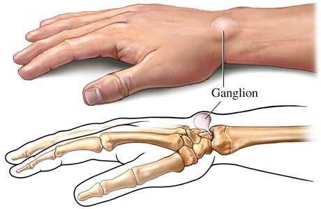 living in well being ganglion