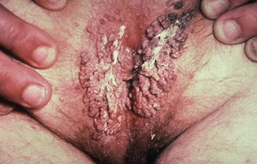 living in well being genital warts