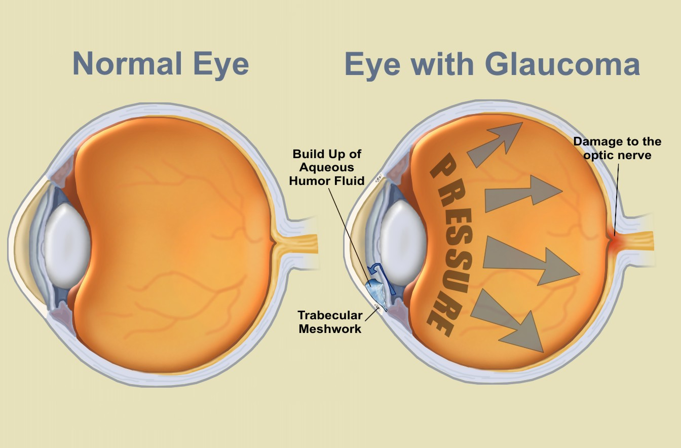 living in well being glaucoma