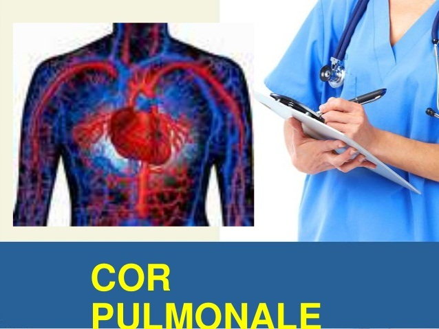 living in well being Cor Pulmonale
