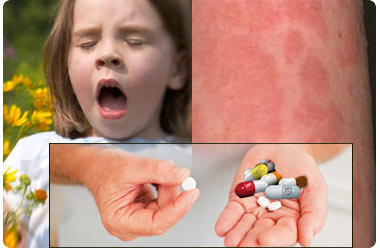living in well being drug allergy