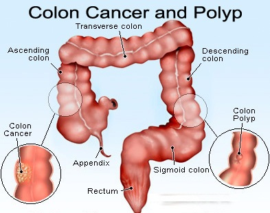 living in well being Colon Polyps