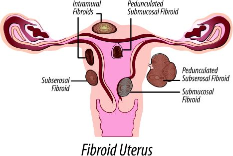living in well being fibroids
