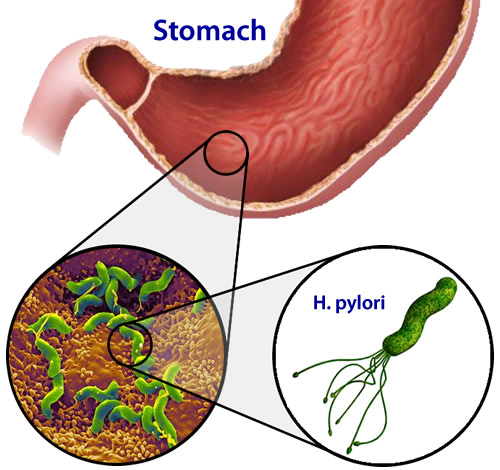 living in well being H. Pylori Infection