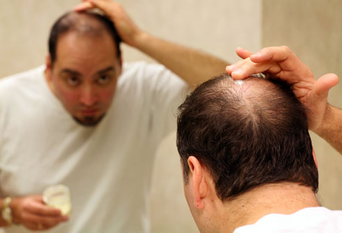 living in well being hair loss