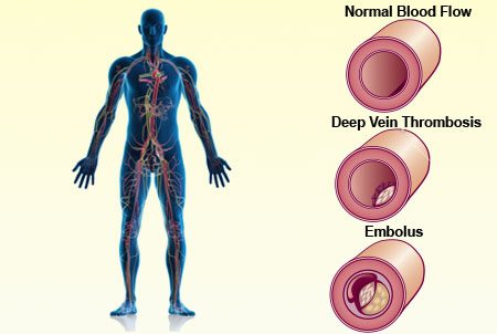 living in well being Deep Vein Thrombosis