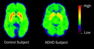 ADHD In Adults 2