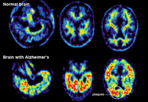 living in well being image Alzheimer's Disease