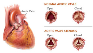 living in well being image Aortic valve stenosis