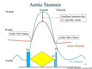 living in well being image aortic stenosis