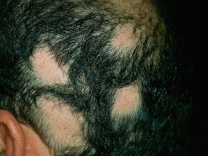 living in well being image ALOPECIA AREATA