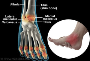 living in well being image ankle injury
