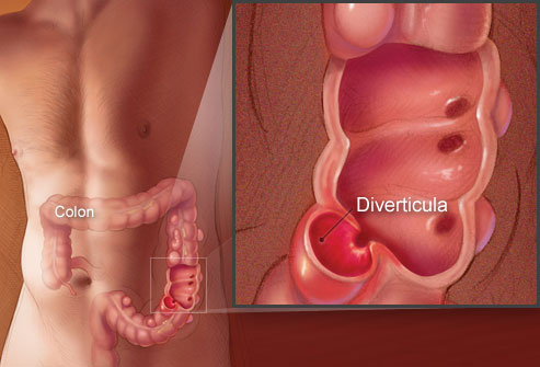 living in well being diverticulitis