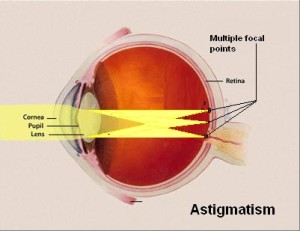 living in well being diagram of the human eye and parts affected by astigmatism are marked by yellow colour