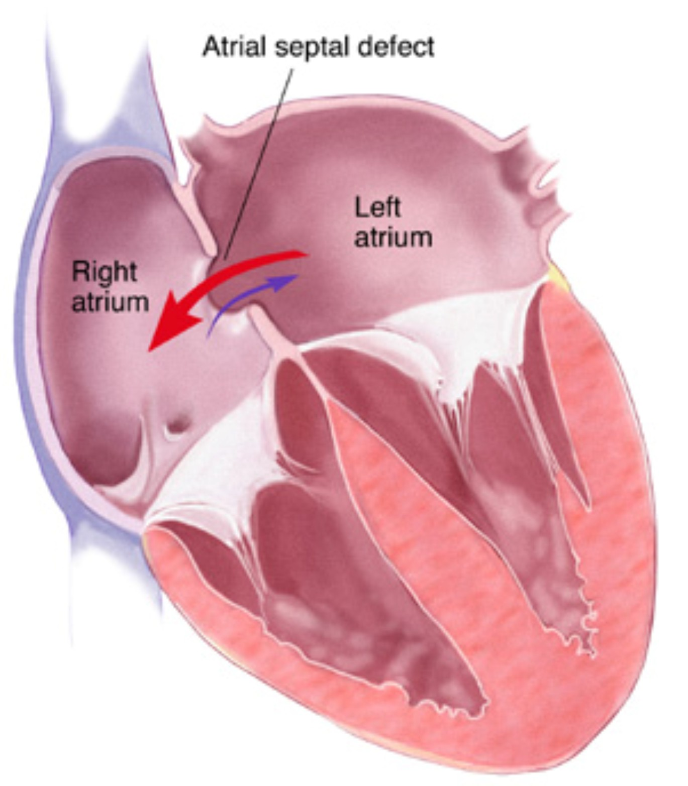 living in well being image Atrial Septal Defect