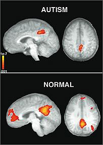 living in well being image  difference between  autism affected brain and normal brain