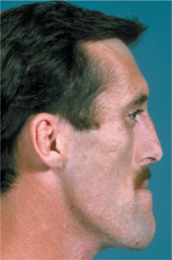 living in wellbeing image a person with acromegaly face