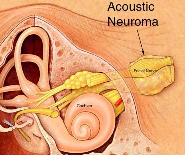 living in wellbeing image  about acoustic neuroma