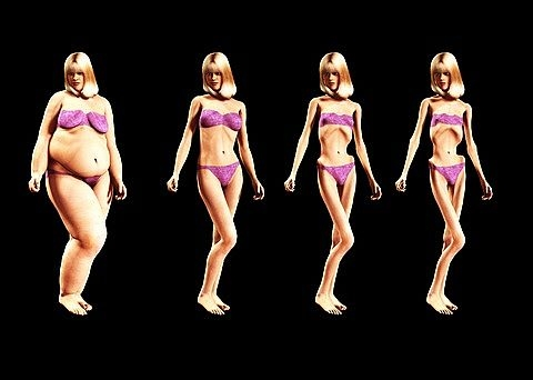 Anorexia Nervosa living in well being image a fat lady changes into thin lady due to Anorexia Nervosa