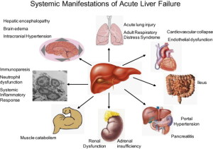 patient in liver failure 2