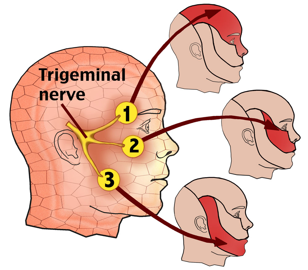 living in well being Trigeminal Neuralgia