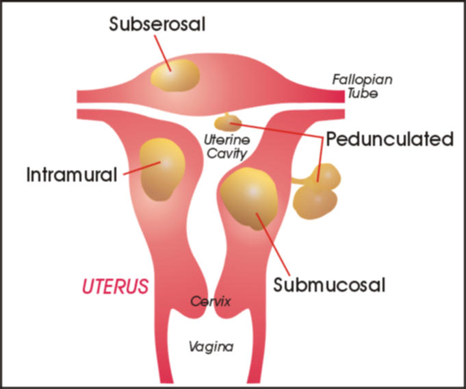 living in well being uterine fibroids