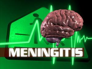 living in well being Viral Meningitis