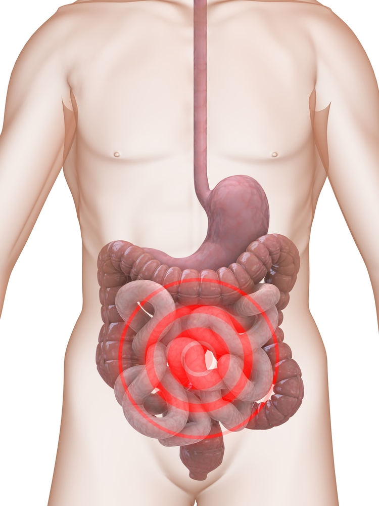 living in well being Irritable Bowel Syndrome