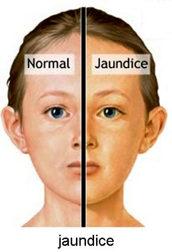 living in well being jaundice