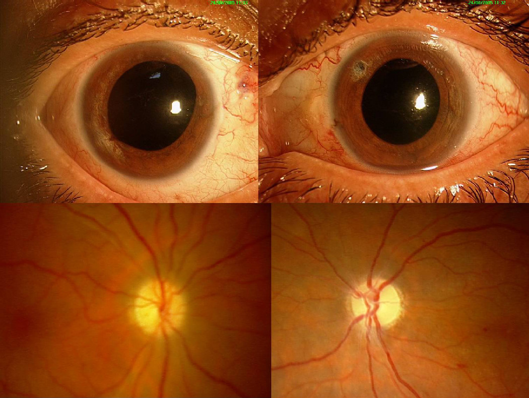 living in well being optic neuritis