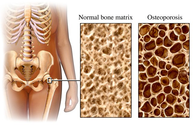 osteoporosis living in well being image