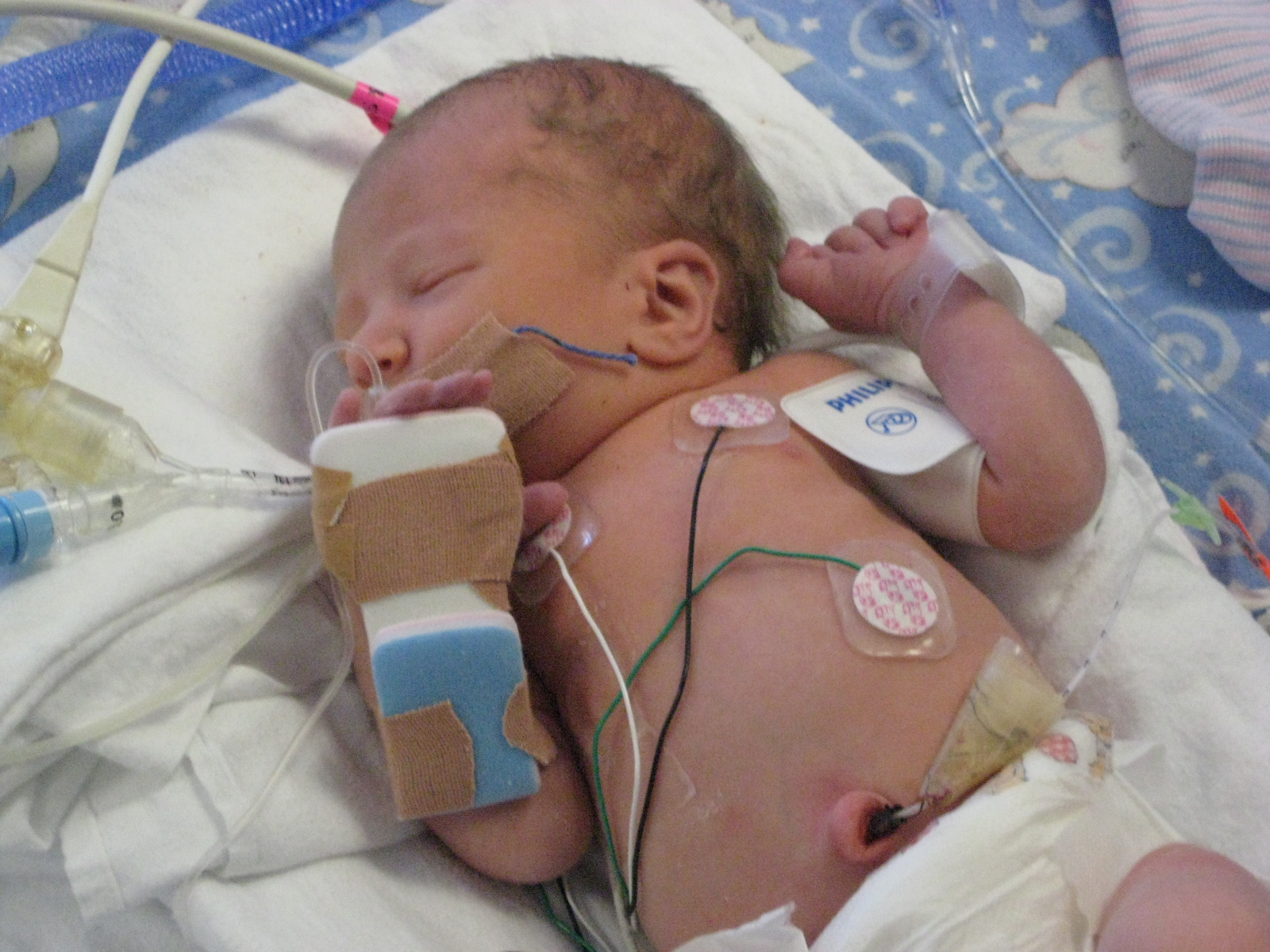living in well being Premature Babies