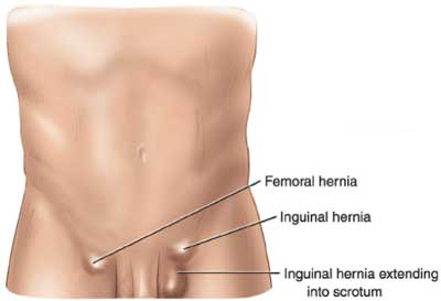 living in well being Inguinal Hernia