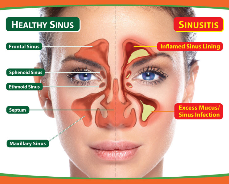 living in well being Sinusitis
