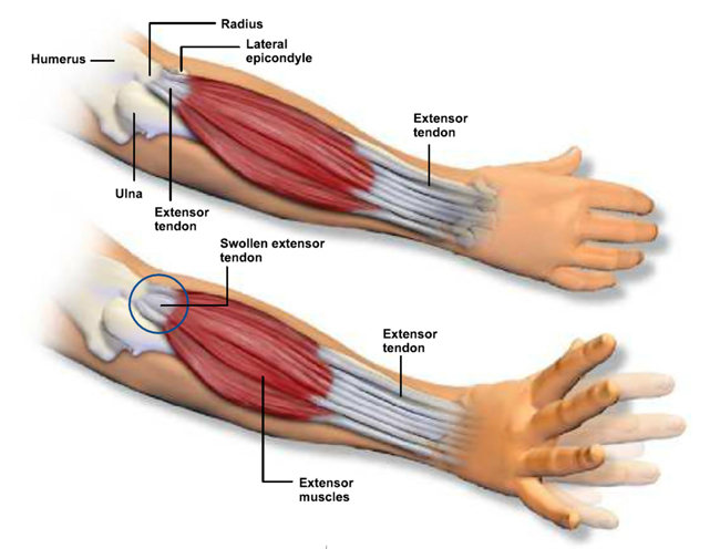 living in well being tennis elbow