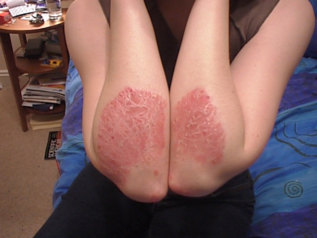 living in well being Psoriasis