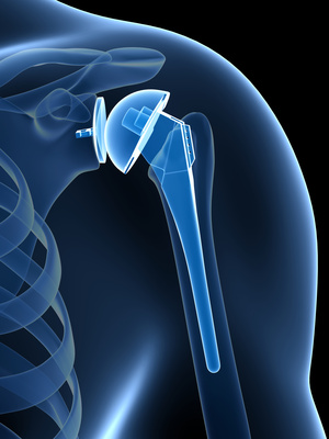 living in well being 3d rendered illustration of a shoulder replacement
