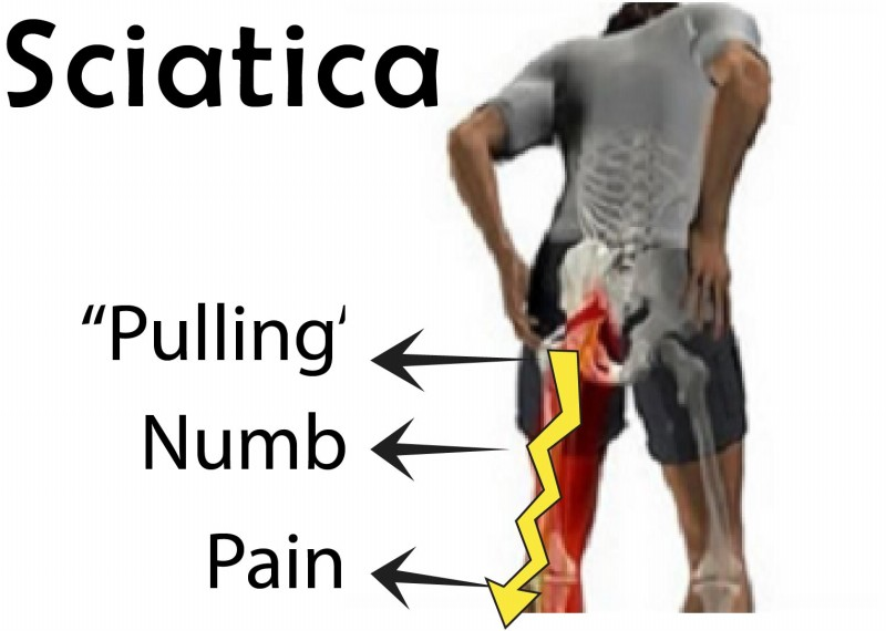 living in well being Sciatica
