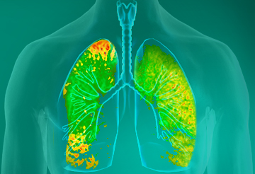 living in well being Lung Diseases