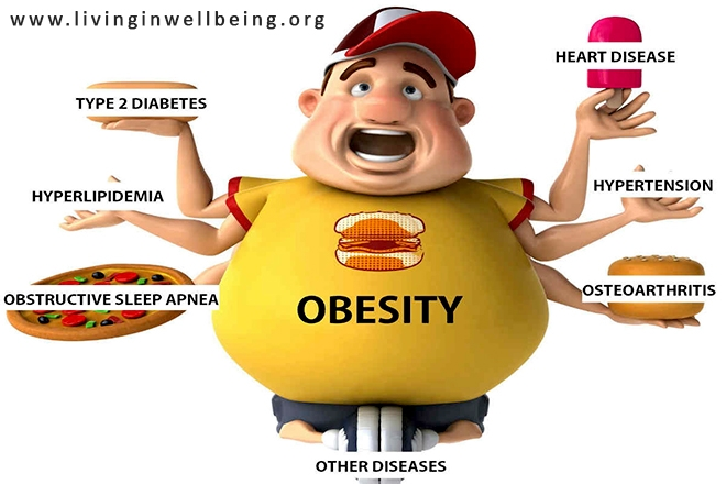 Do You Know the Health Hazards of Obesity & Over Weight