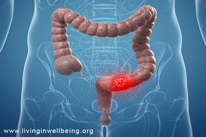 Do You Know the Signs & Symptoms of Colon Cancer