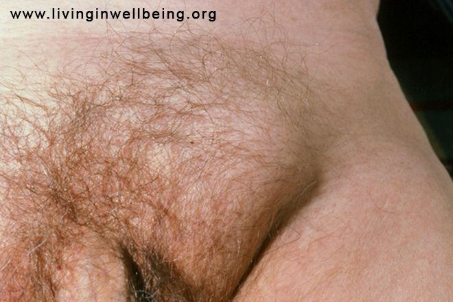 Try These Simple Tips for Preventing Hernia